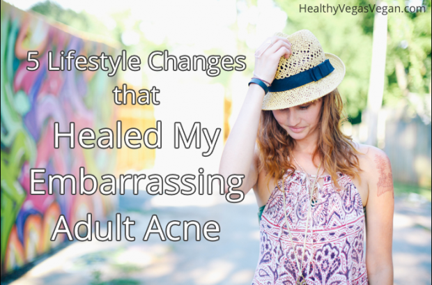 5 Lifestyle Changes that Healed My Adult Acne